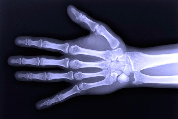 Бурсит суставов пальцев рук на рентгеновском снимке