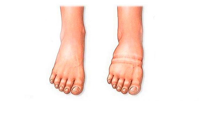 Здоровая нога и нога подверженная отчетности