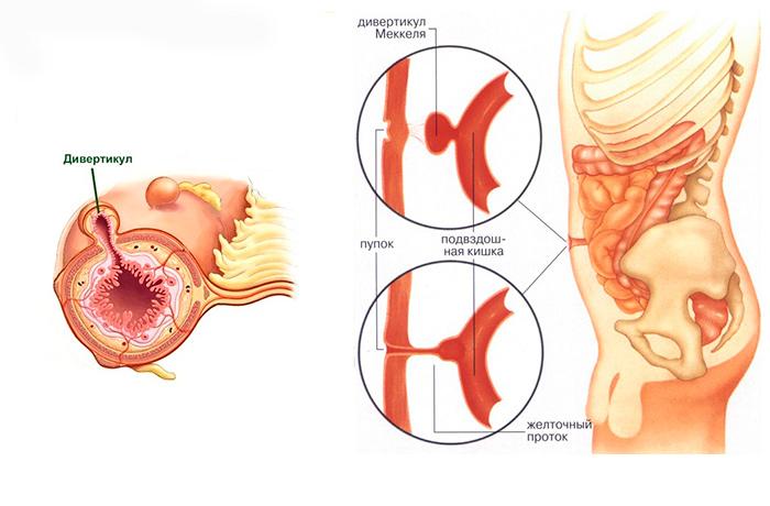 Строение дивертикул кишечника