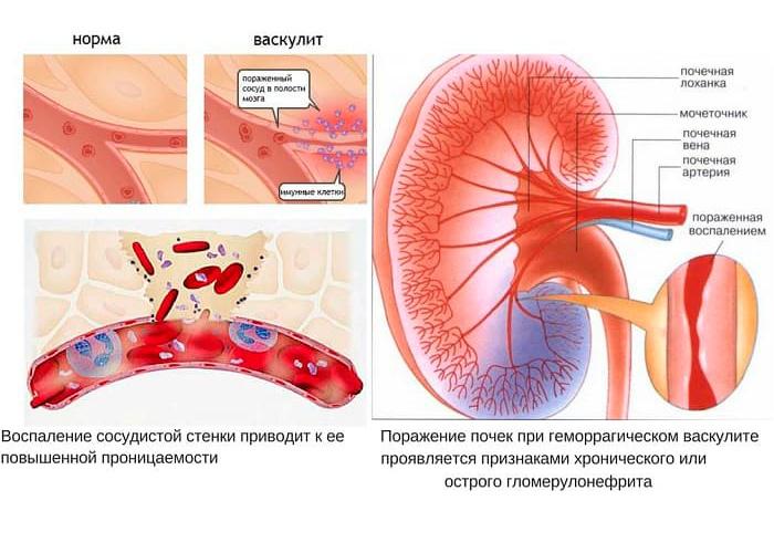 Механизмы развития геморрагического васкулита