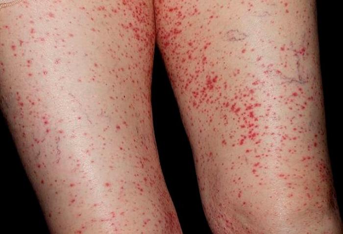 Покраснение по коже - один из симптомов болезни Шенлейна-Геноха