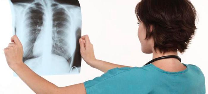Диагностика спонтанного пневмоторакса
