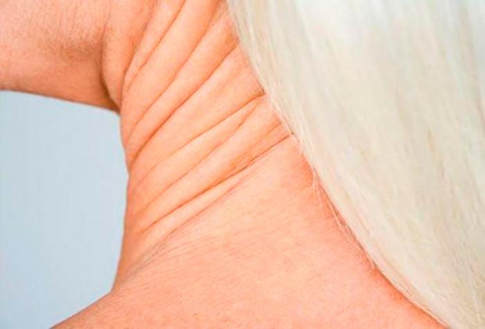 Дряблая кожа на шее: как подтянуть кожный покров в домашних условиях