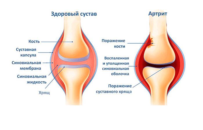 Развитие инфекционного артрита суставов
