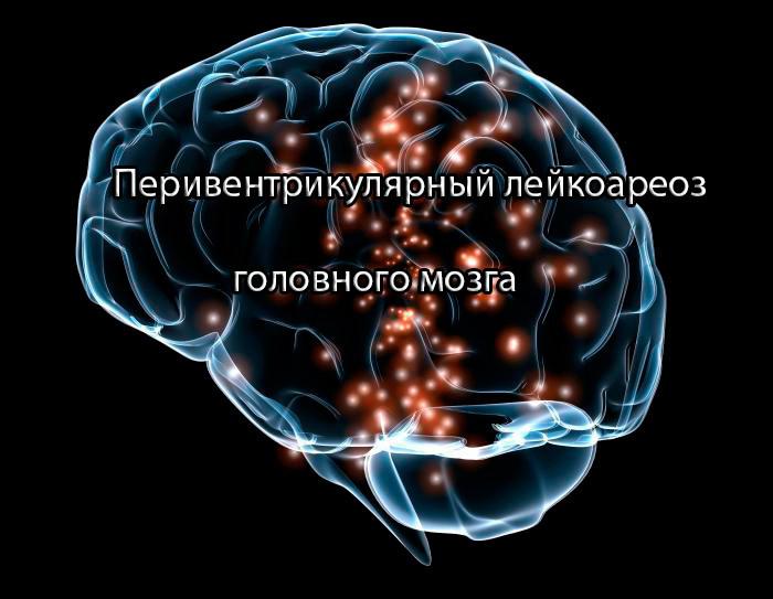 Перивентрикулярный лейкоареоз головного мозга: причины развития и лечение болезни