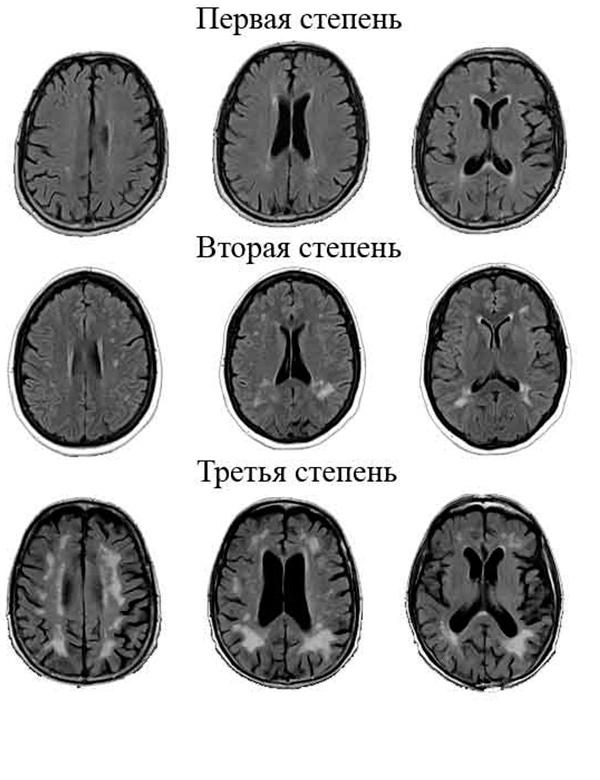 Степени развития перивентрикулярного лейкоареоза головного мозга