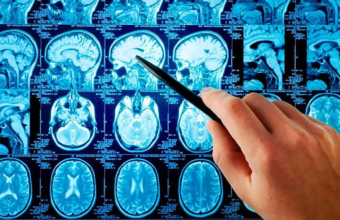 Диагностика сосудистой деменции на МРТ