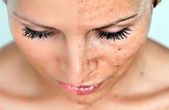Возрастные пигментные пятна: как эффективно избавиться от дефектов кожи
