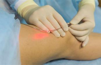 Лечение лазером варикозного расширения вен: описание современной технологии