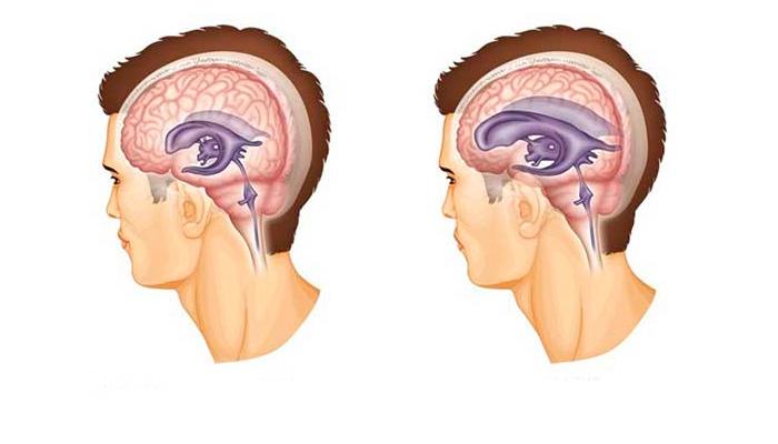 Нормальные желудочки и желудочки головного мозга подверженные гидроцефалии