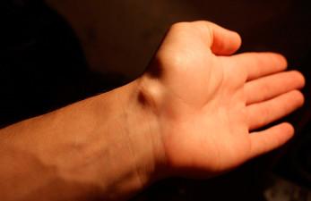 Гигрома: лечение самыми эффективными народными средствами