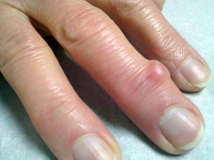 Симптомы гигромы на пальце руки