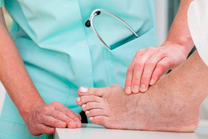 Диагностика врачом гигромы стопы