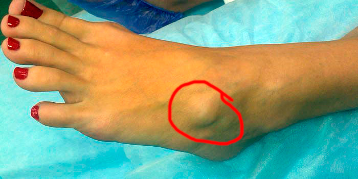 Симптоматика гигромы стопы