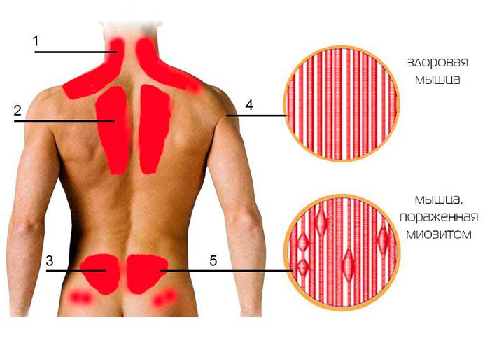 Зоны наиболее частого образования миозита