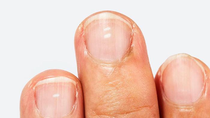 Белые пятна на ногтях пальцев рук: причины возникновения патологии