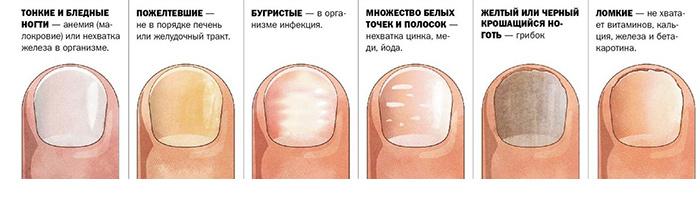 Виды пятен на ногтях и их причины возникновения