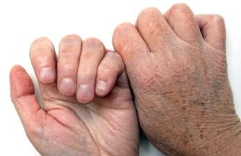 Сухость кожи у пожилых людей: причины возрастной патологии