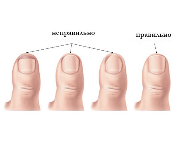 Как правильно стричь ногти на пальцах ног
