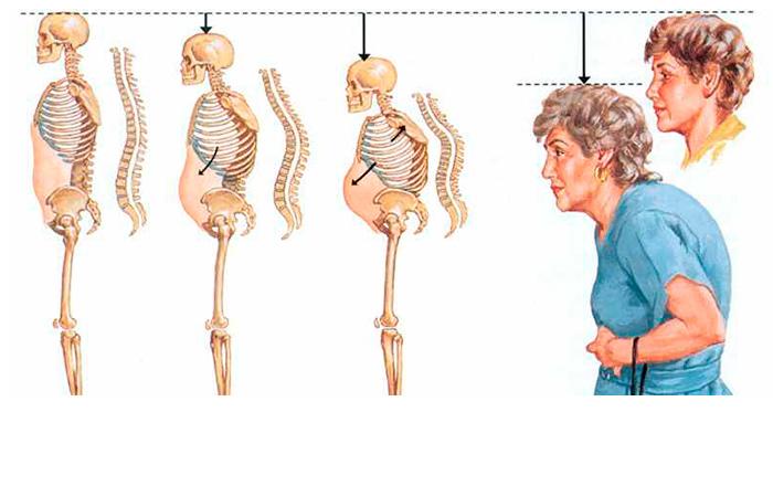 Прогрессирование остеопороза у пожилых людей
