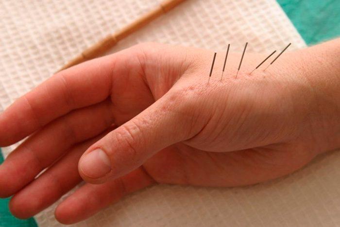 Су Джок терапия для пожилых людей: как проходит процедура