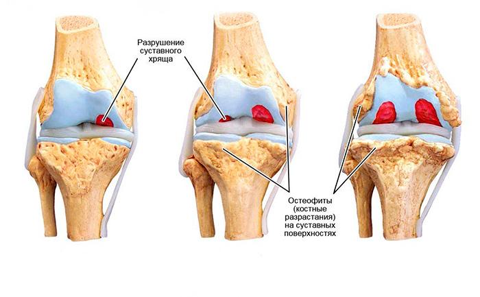 Износ хрящевой ткани коленного сустава