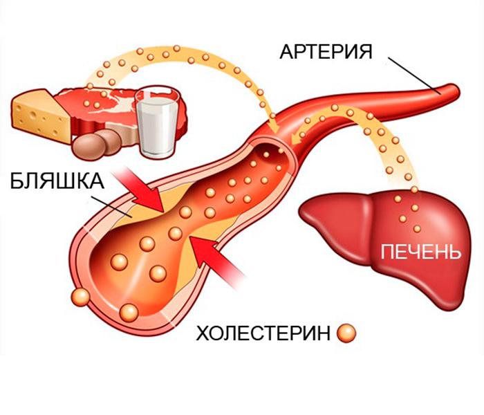 Обмен холестерина в организме человека