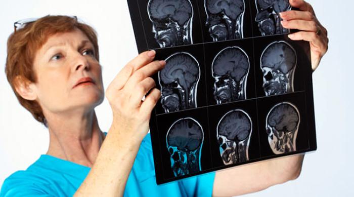 Диагностика менингита врачом