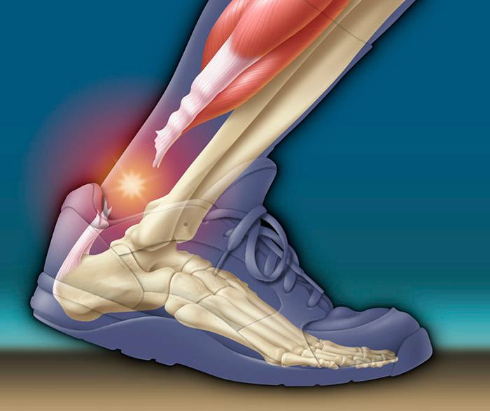 Разрыв ахиллова сухожилия - очень серьезная травма