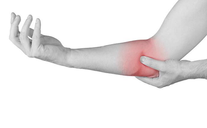 Реабилитация после вывиха локтевого сустава: сроки восстановления и упражнения