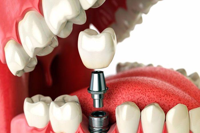Имплантация зубов за границей - все, что важно знать о стоматологическом туризме