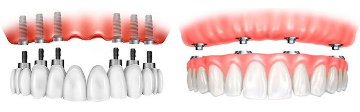 Методика имплантации зубов All-on-4